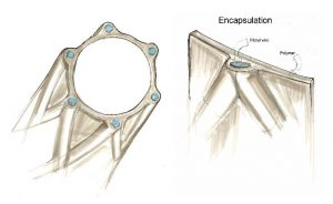 Encapsulation coating of a braided stent