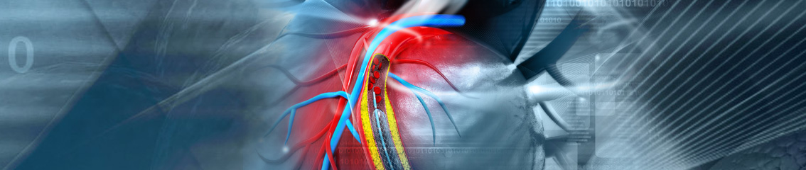 Vascular occlusion devices - Medical Applications